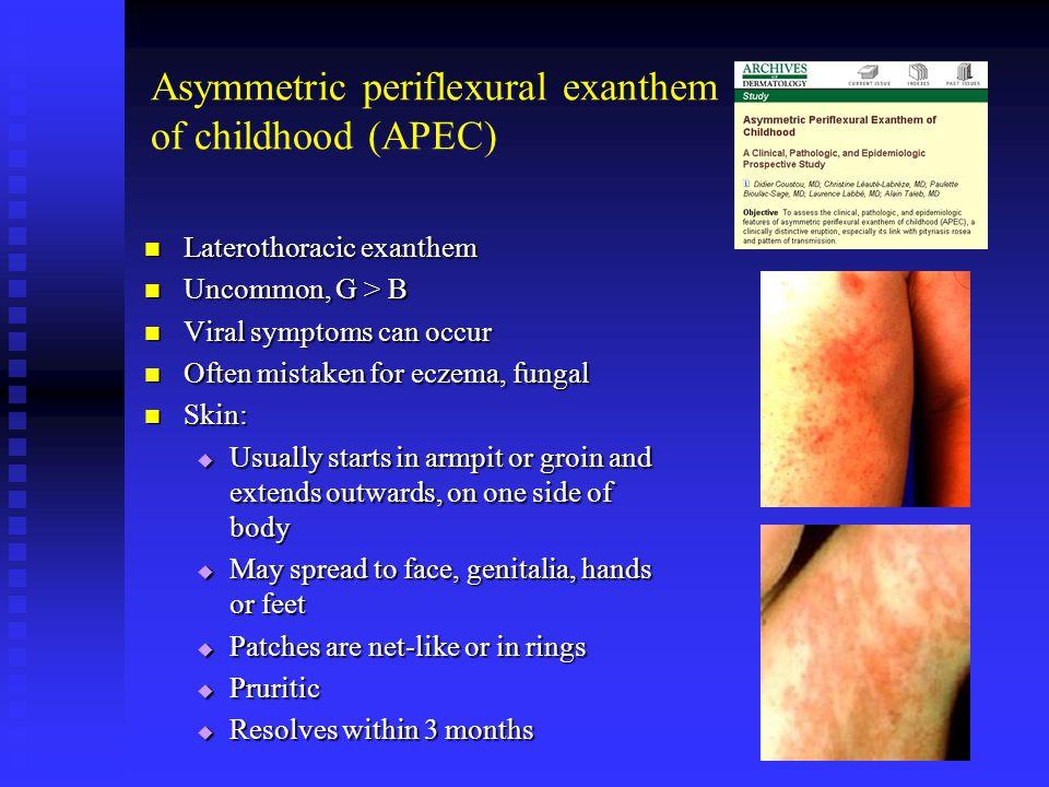 Asymmetric periflexural exanthem of childhood (APEC)
