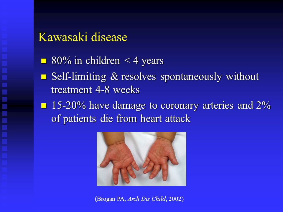 Kawasaki disease 80% in children < 4 years