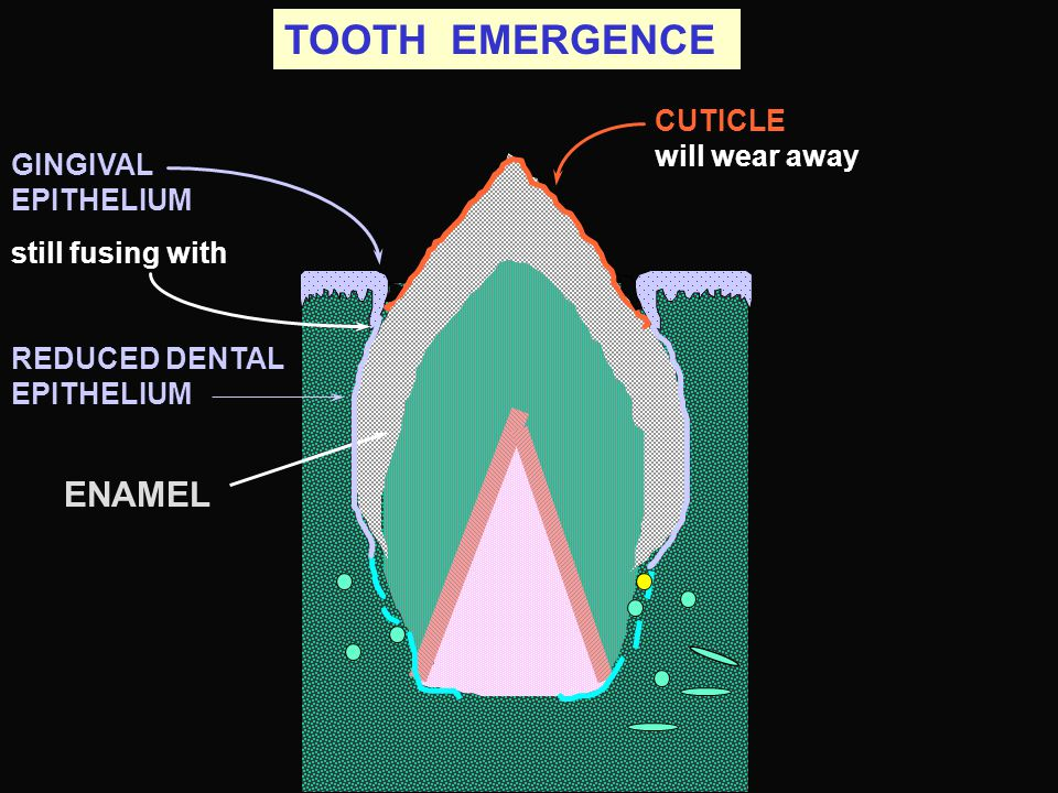 TOOTH EMERGENCE ENAMEL CUTICLE will wear away GINGIVAL EPITHELIUM