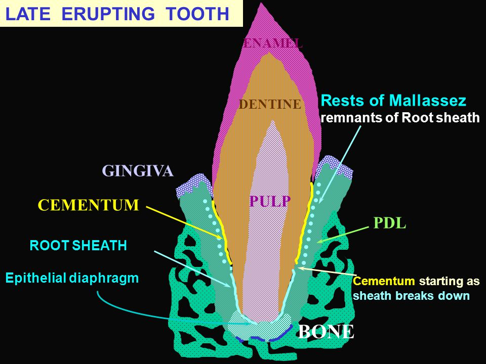 BONE LATE ERUPTING TOOTH GINGIVA CEMENTUM PDL