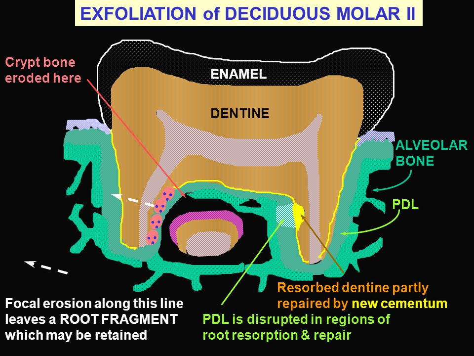 EXFOLIATION of DECIDUOUS MOLAR II