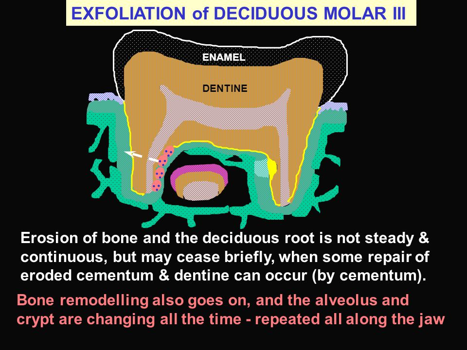 EXFOLIATION of DECIDUOUS MOLAR III