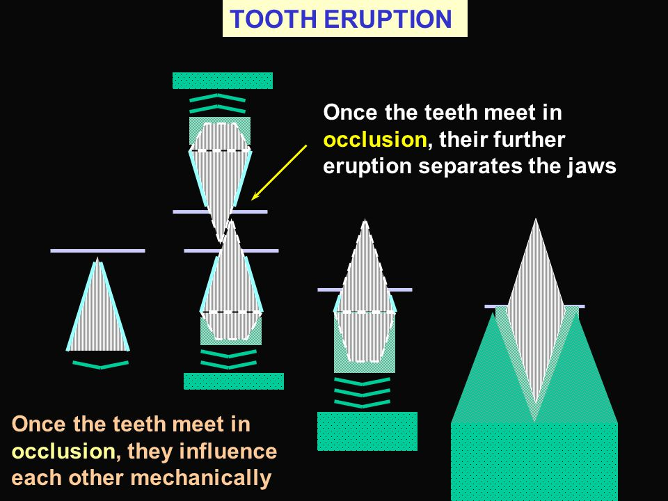 TOOTH ERUPTION Once the teeth meet in occlusion, their further eruption separates the jaws.