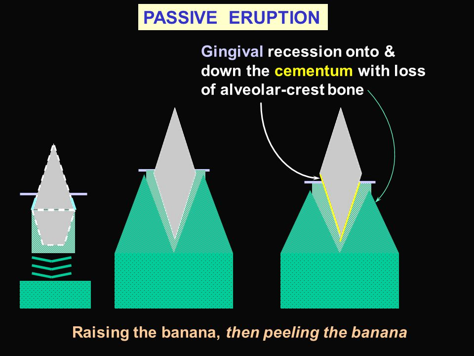 PASSIVE ERUPTION Gingival recession onto & down the cementum with loss of alveolar-crest bone.