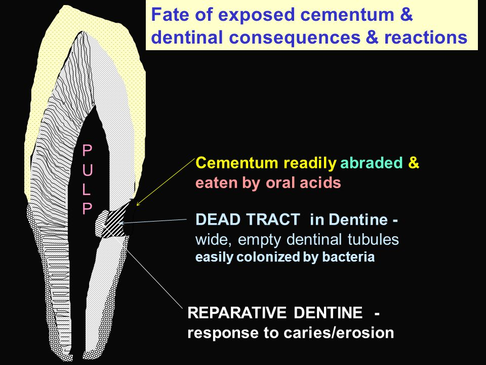 Fate of exposed cementum & dentinal consequences & reactions