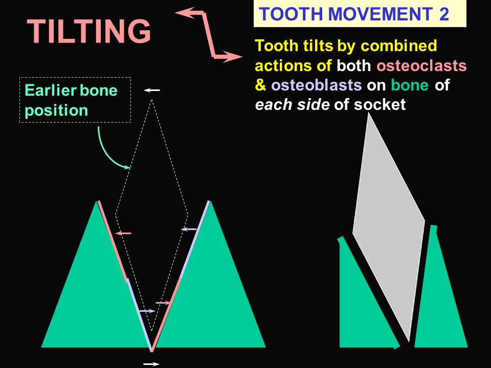 TILTING TOOTH MOVEMENT 2