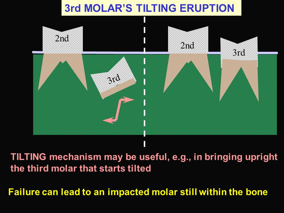3rd MOLAR'S TILTING ERUPTION