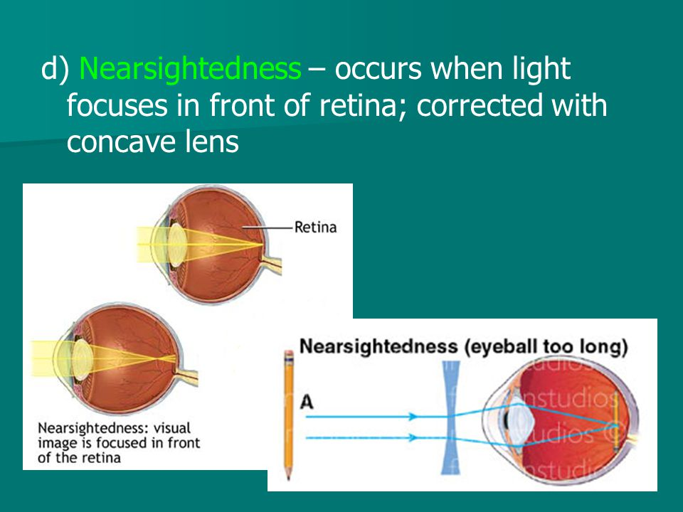 d) Nearsightedness – occurs when light focuses in front of retina; corrected with concave lens