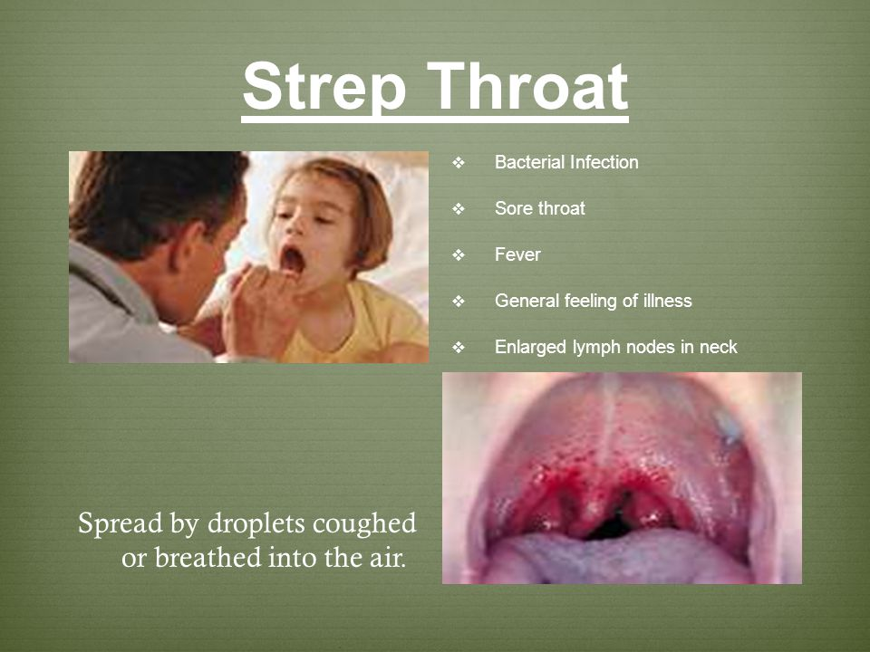 Strep Throat Spread by droplets coughed or breathed into the air.