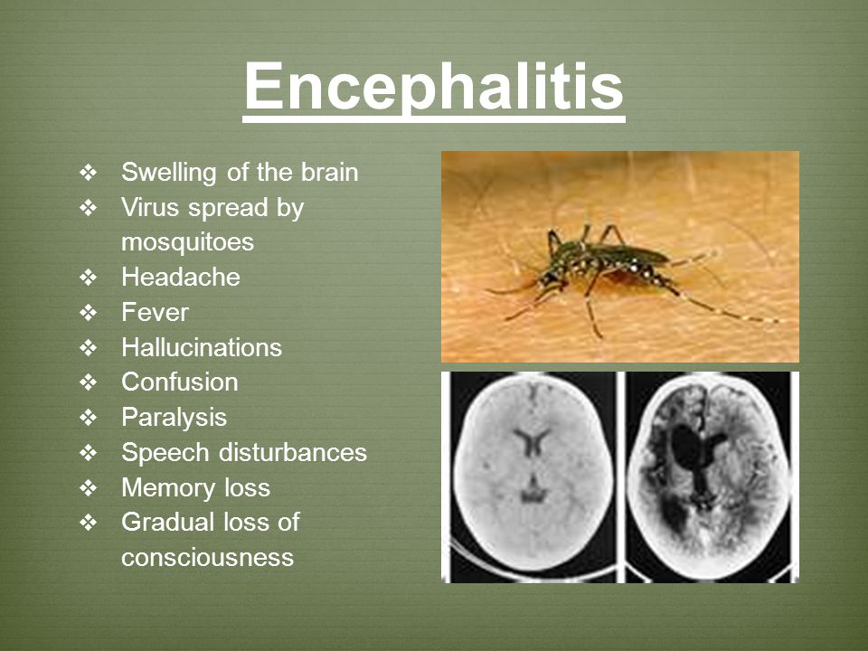 Encephalitis Swelling of the brain Virus spread by mosquitoes Headache