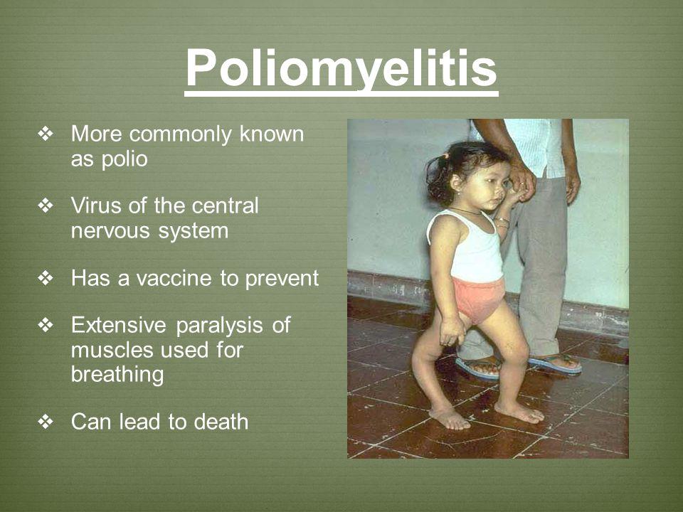 Poliomyelitis More commonly known as polio