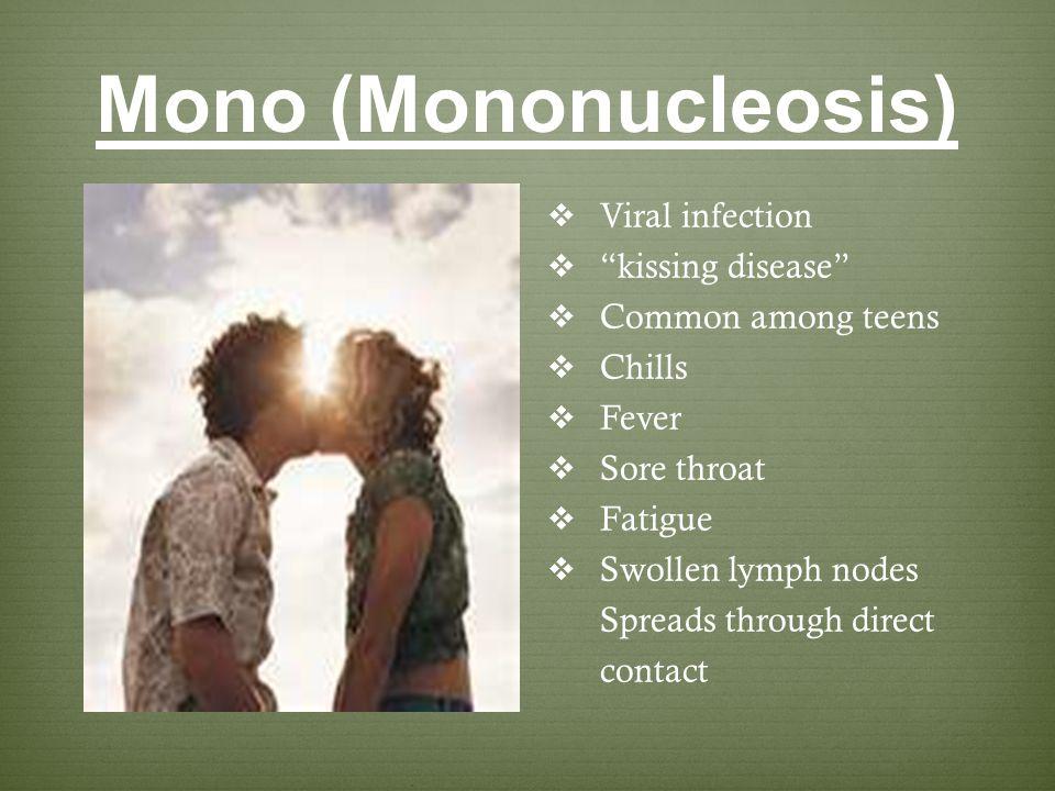 Mono (Mononucleosis) Viral infection kissing disease