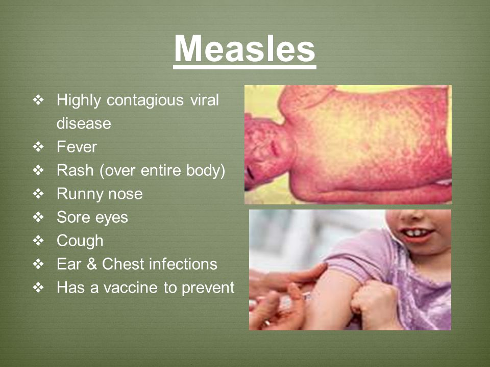 Measles Highly contagious viral disease Fever Rash (over entire body)