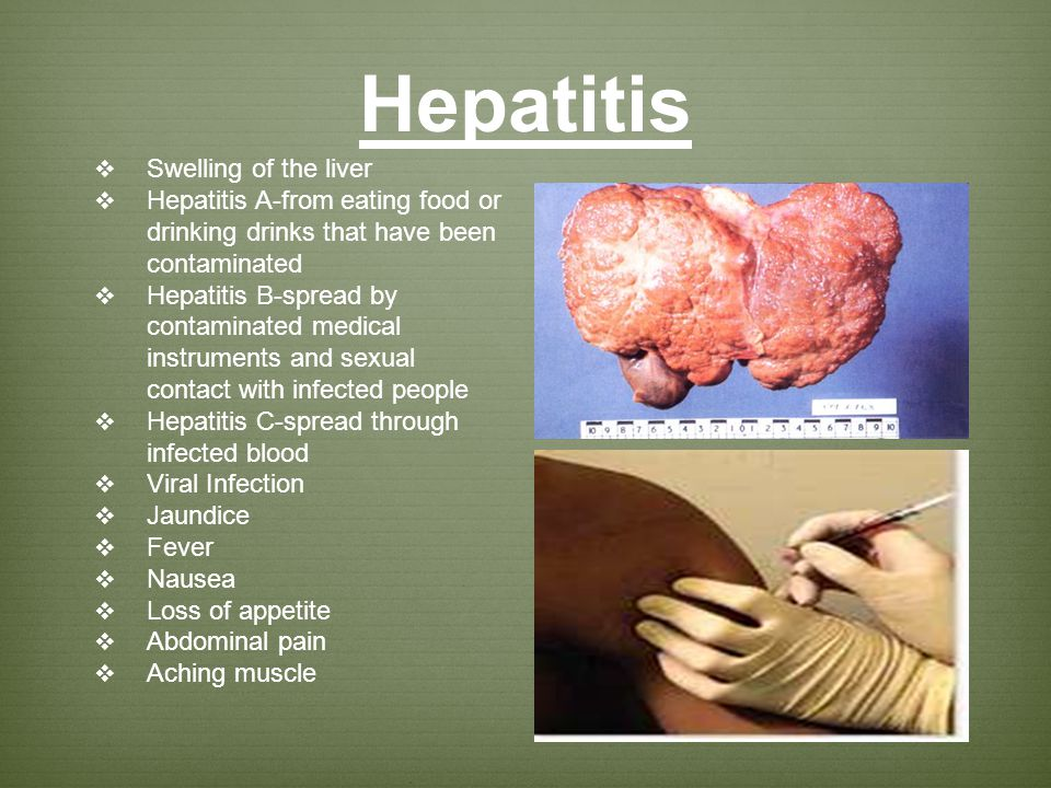Hepatitis Swelling of the liver