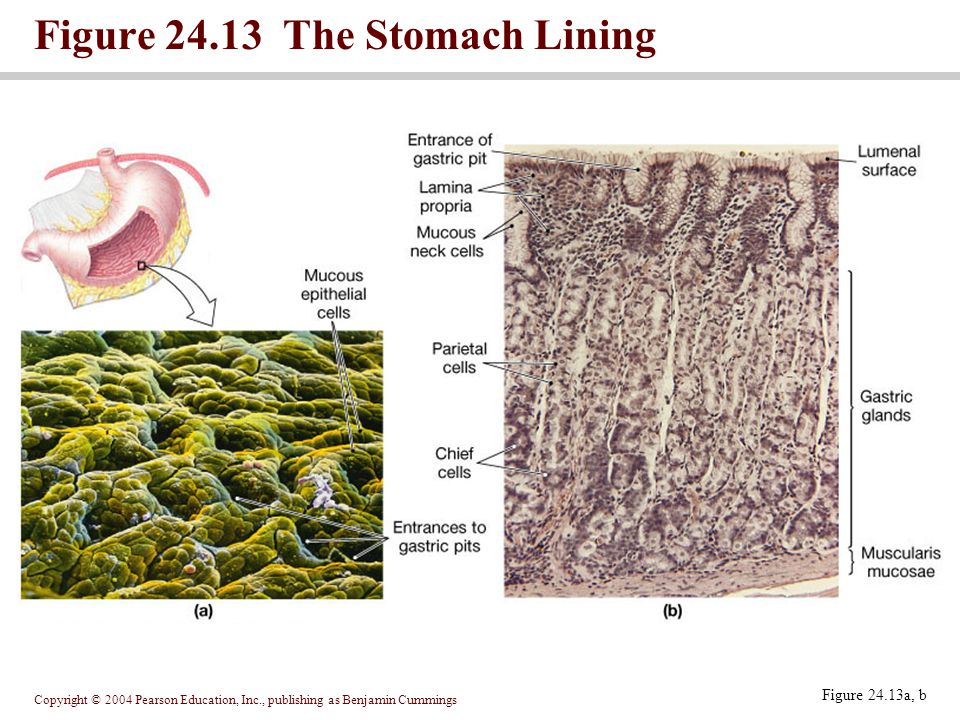 Figure 24.13 The Stomach Lining