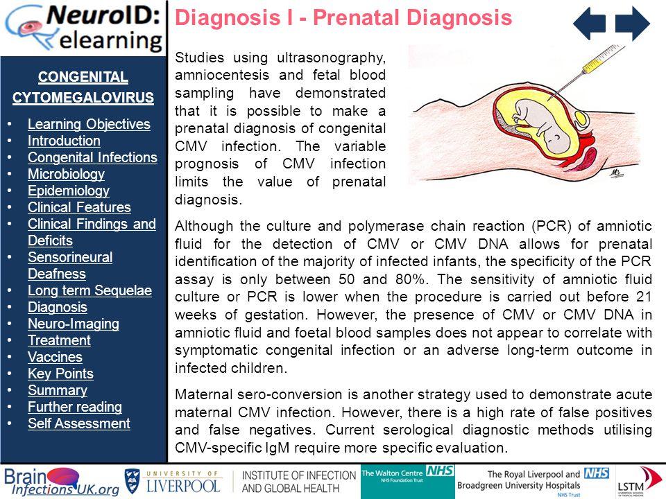 congenital cytomegalovirus