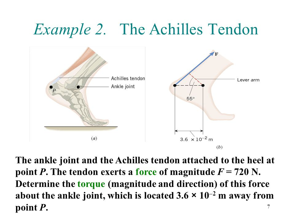 Example 2. The Achilles Tendon