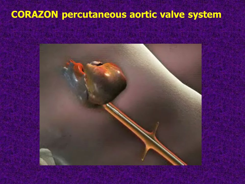 CORAZON percutaneous aortic valve system