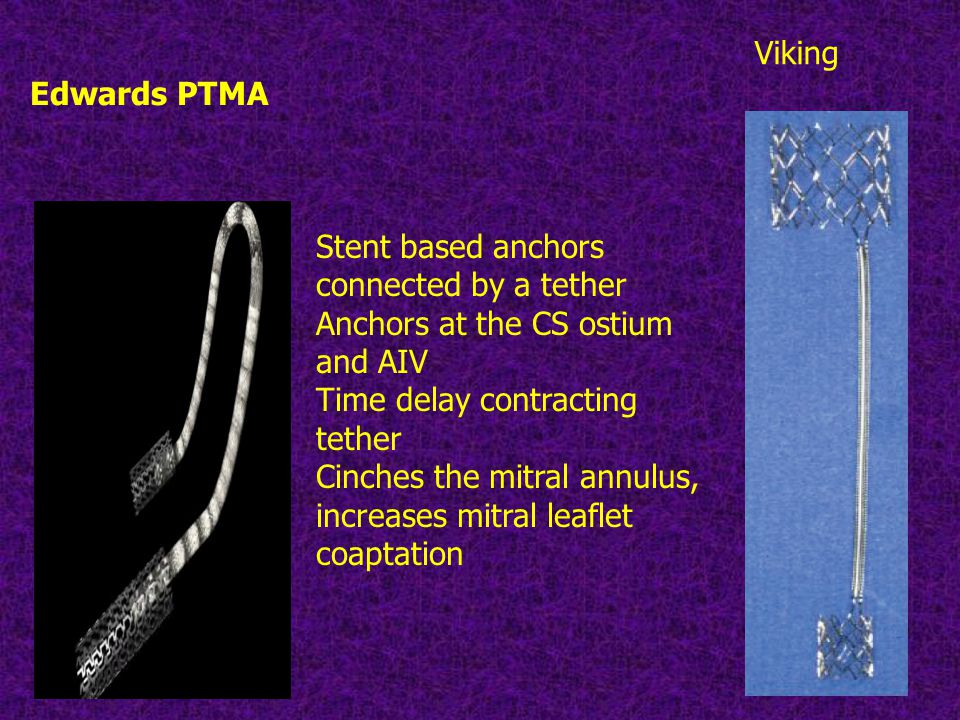 Edwards PTMA Viking. Stent based anchors connected by a tether. Anchors at the CS ostium and AIV.