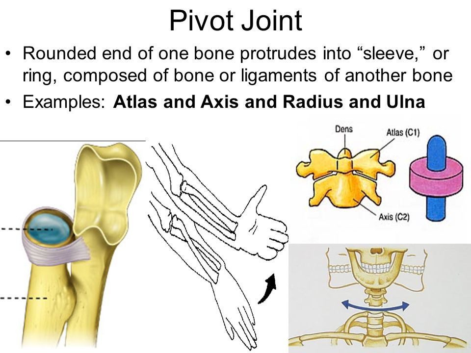 Pivot Joint Rounded end of one bone protrudes into sleeve, or ring, composed of bone or ligaments of another bone.