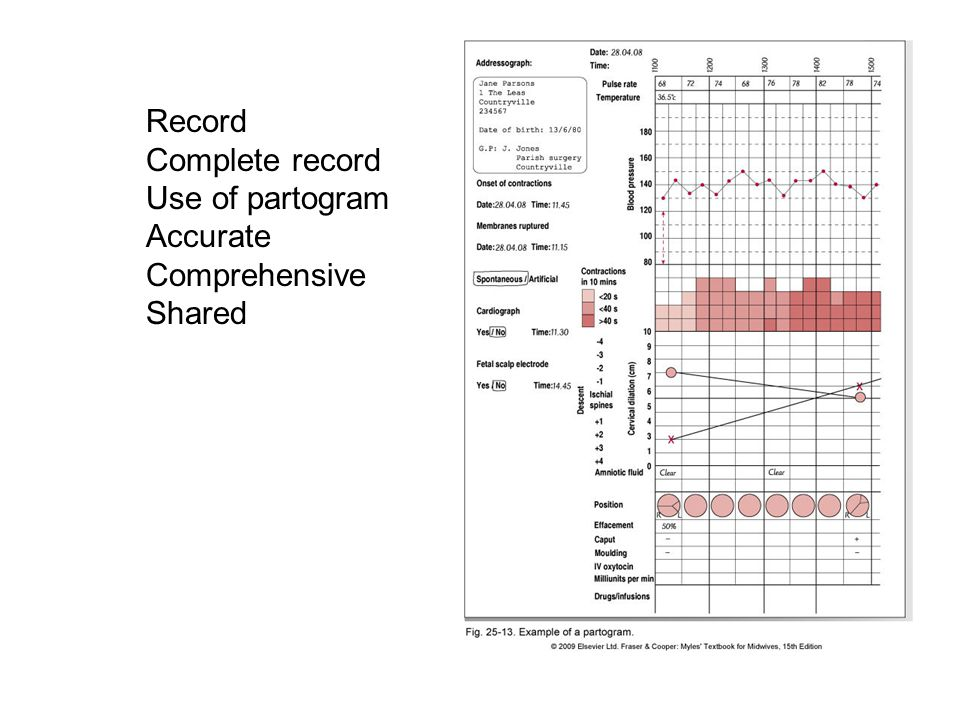 Record Complete record Use of partogram Accurate Comprehensive Shared