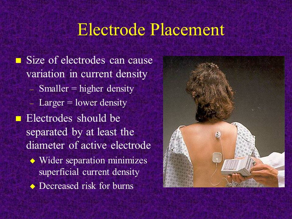 Electrode Placement Size of electrodes can cause variation in current density. Smaller = higher density.