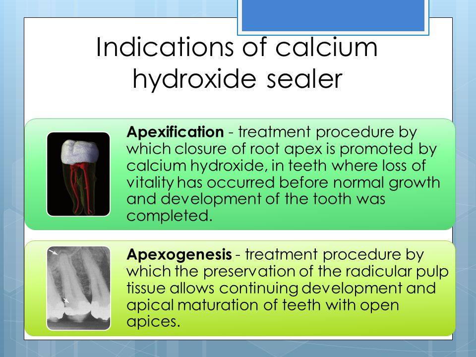 Indications of calcium hydroxide sealer