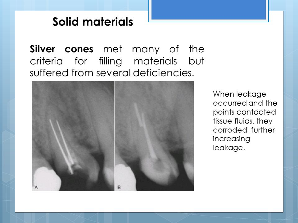 Solid materials Silver cones met many of the criteria for filling materials but suffered from several deficiencies.