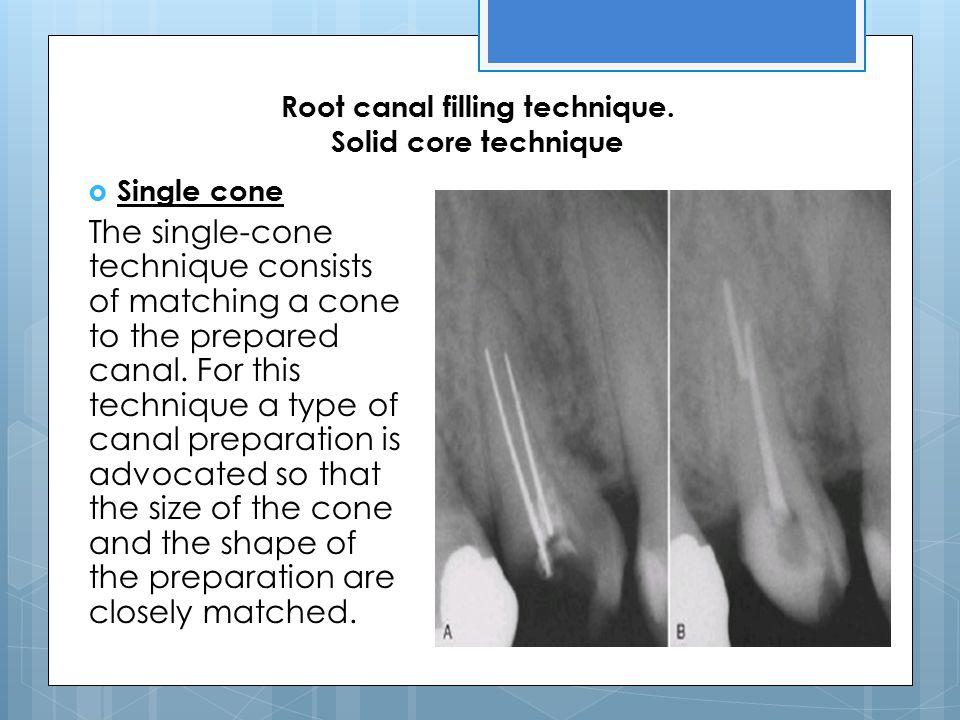 Root canal filling technique. Solid core technique
