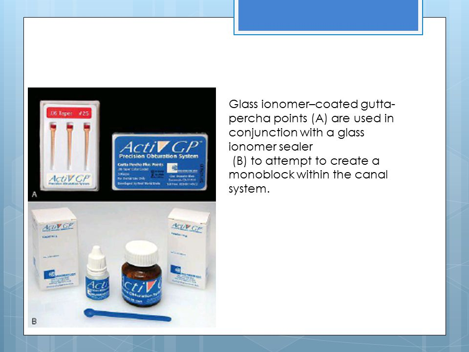 Glass ionomer–coated gutta-percha points (A) are used in conjunction with a glass ionomer sealer