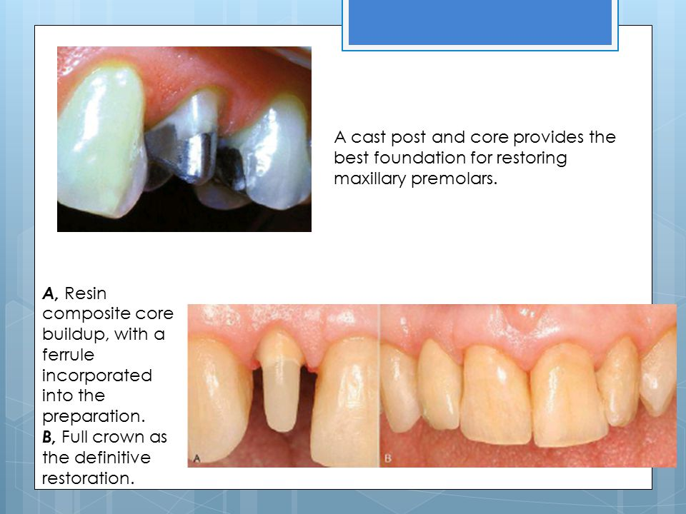 A cast post and core provides the best foundation for restoring maxillary premolars.