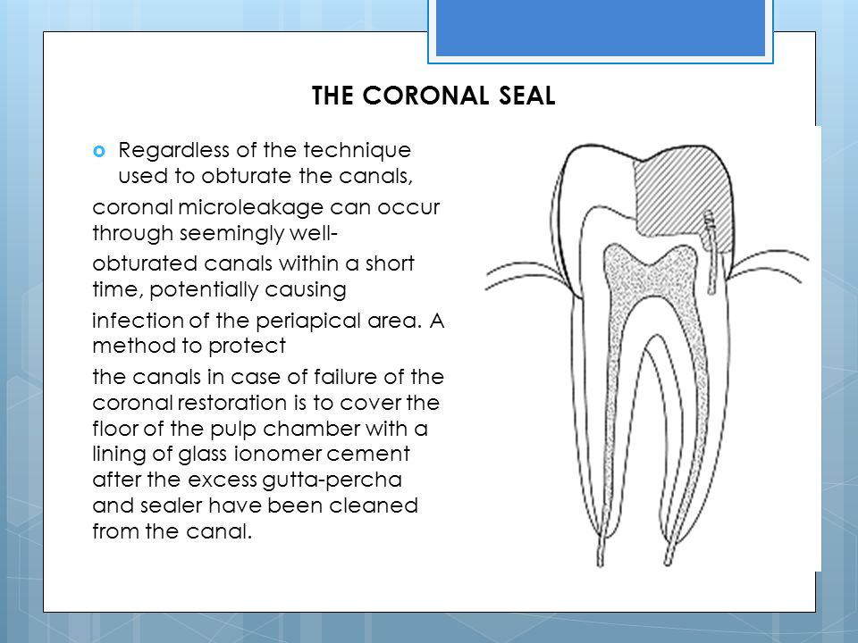 THE CORONAL SEAL Regardless of the technique used to obturate the canals, coronal microleakage can occur through seemingly well-