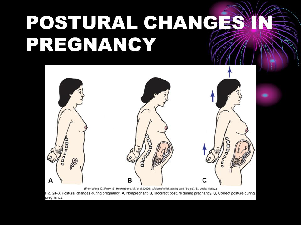 POSTURAL CHANGES IN PREGNANCY