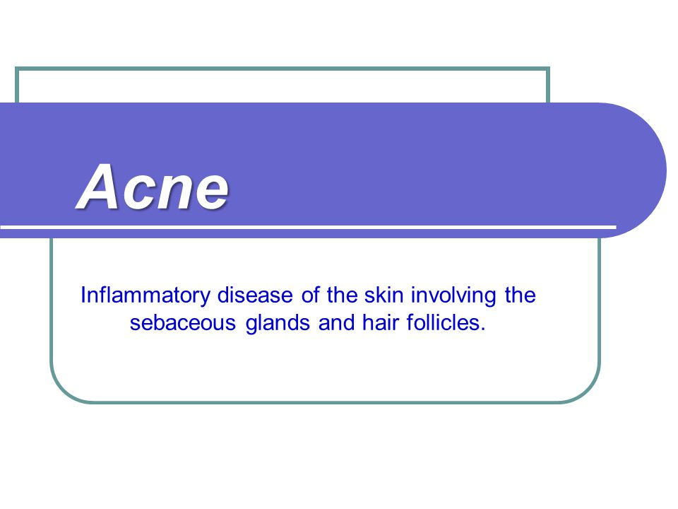 Acne Inflammatory disease of the skin involving the sebaceous glands and hair follicles.