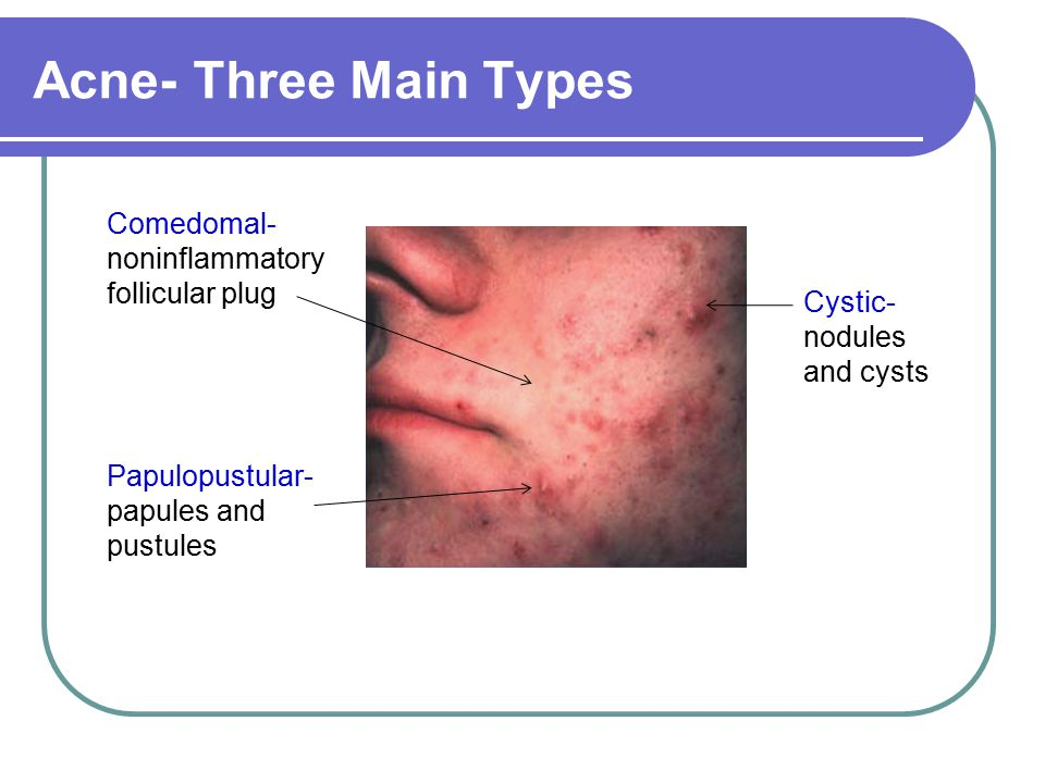 Acne- Three Main Types ACNE Comedomal- noninflammatory follicular plug