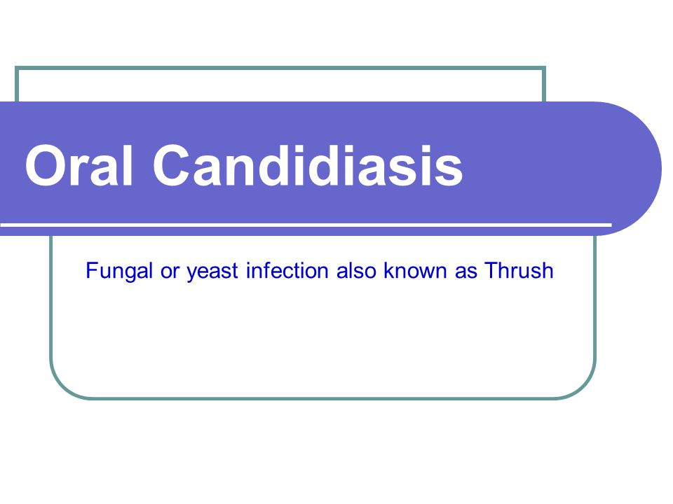 Fungal or yeast infection also known as Thrush