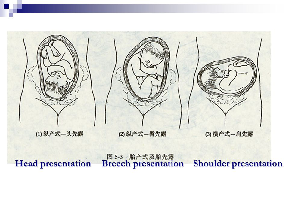 Head presentation Breech presentation Shoulder presentation