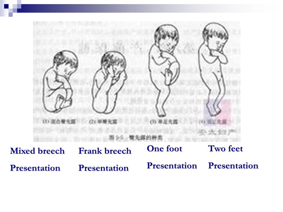 One foot Presentation Two feet Presentation Mixed breech Presentation Frank breech Presentation