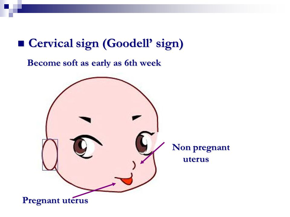 Cervical sign (Goodell' sign) Become soft as early as 6th week
