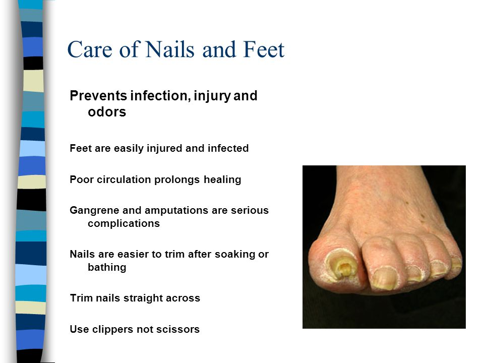 Care of Nails and Feet Prevents infection, injury and odors