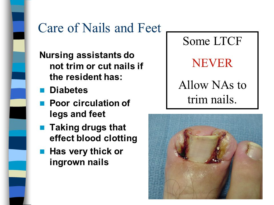 Care of Nails and Feet Some LTCF NEVER Allow NAs to trim nails.