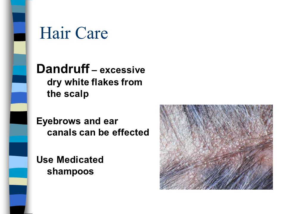 Hair Care Dandruff – excessive dry white flakes from the scalp