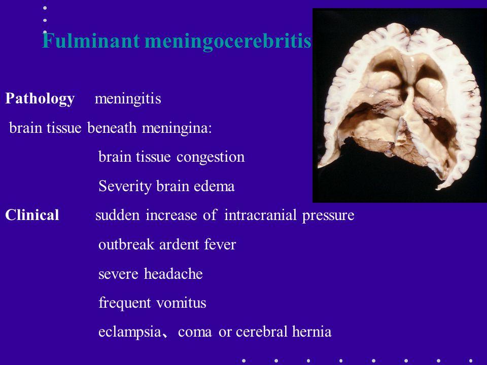 Fulminant meningocerebritis
