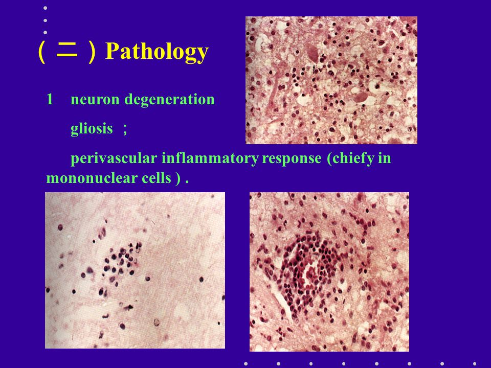 (二)Pathology 1 neuron degeneration gliosis ;