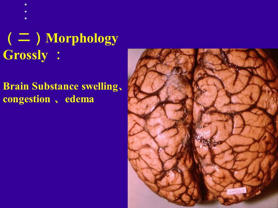 (二)Morphology Grossly : Brain Substance swelling、congestion 、edema