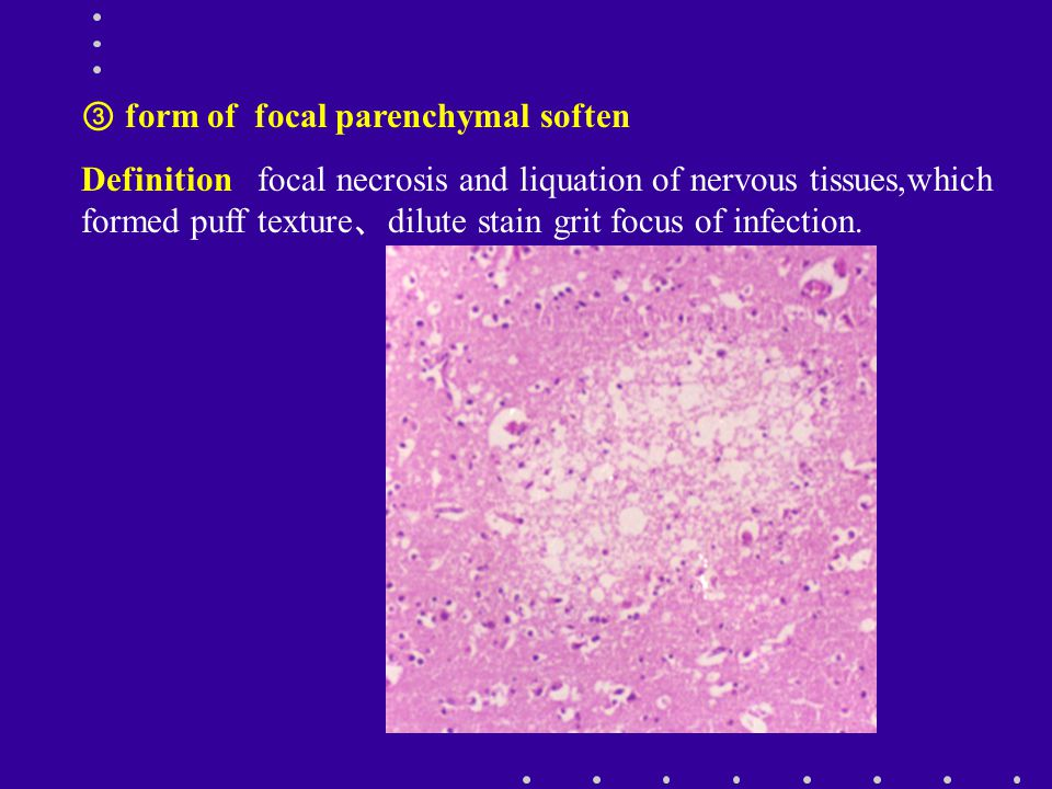 ③ form of focal parenchymal soften