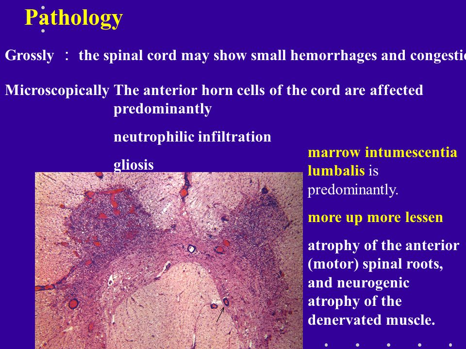 Pathology Grossly : the spinal cord may show small hemorrhages and congestion. Microscopically.