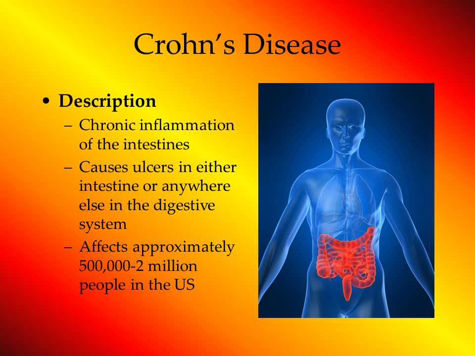 Crohn's Disease Description Chronic inflammation of the intestines