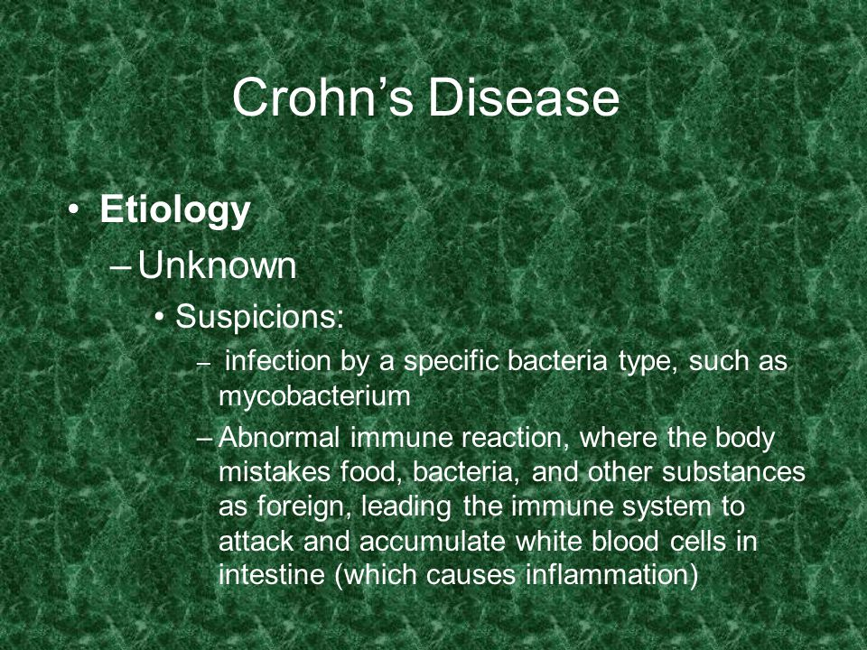 Crohn's Disease Etiology Unknown Suspicions:
