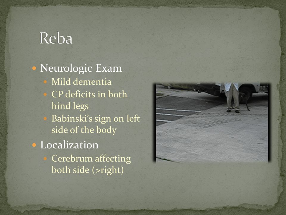 Reba Neurologic Exam Localization Mild dementia